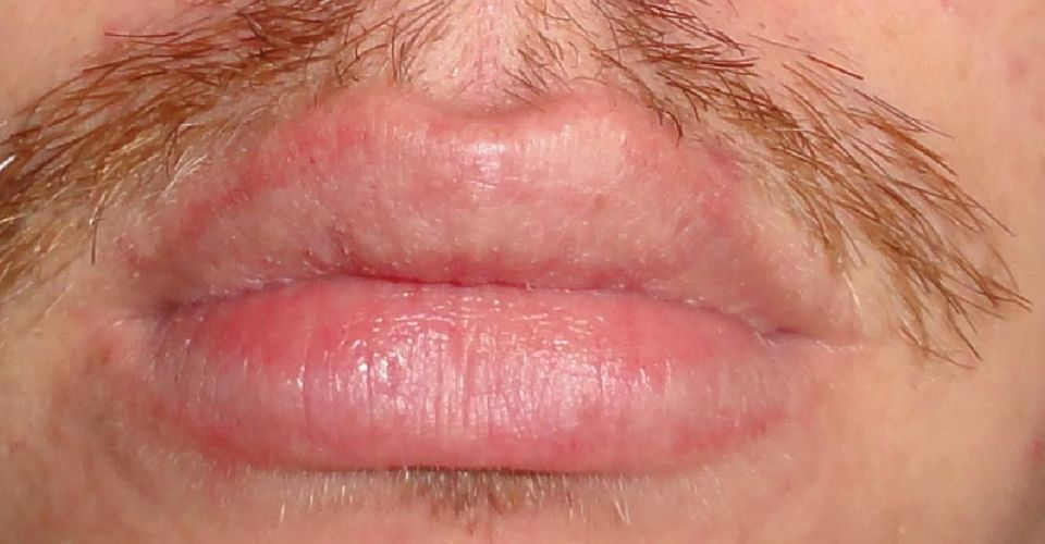 Why does dead skin keep peeling from my lips? | Zocdoc Answers