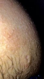 What is this lesion please any idea?