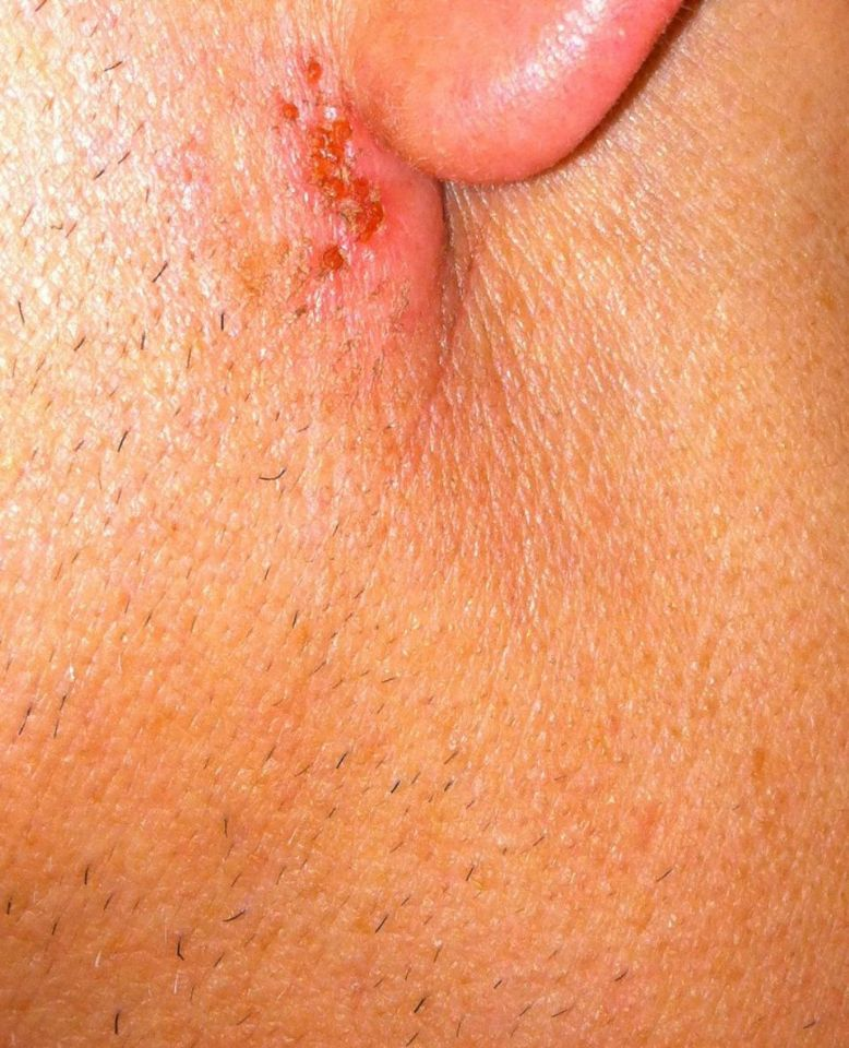 Ear ache and Skin rash: Common Related Medical Conditions