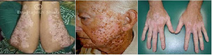 http://curezone.com/upload/_T_Forums/turiya_file/vitiligo_2_1.jpg