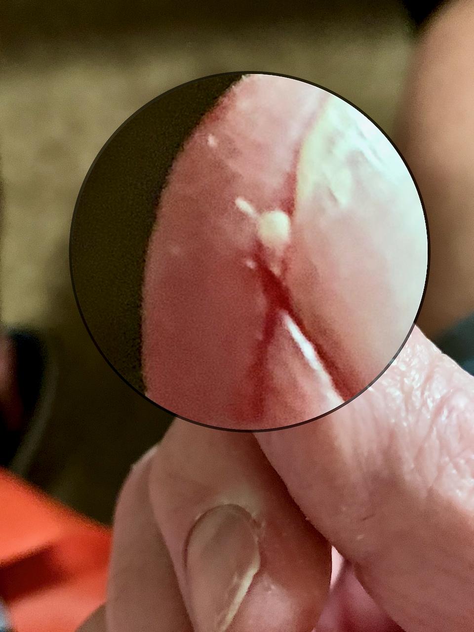 https://www.curezone.org/upload/_U_V_W_Forums/Unidentified_Skin/Parasite_Larva_Thumb_nail.png