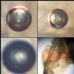 Microscopic Photos of an Ova, Cyst, Egg from Threadworm, Demodex or ???