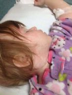 Rebecca R Vaccine induced measles 3