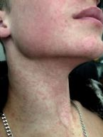 vaccine induced measles 15 year old jpg 31