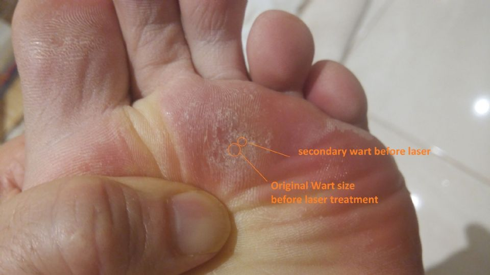 https://www.curezone.org/upload/_U_V_W_Forums/Warts/second_wart.jpg