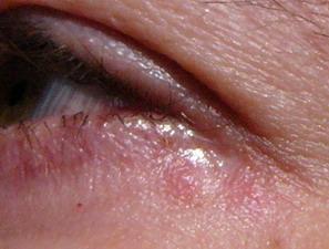 skin irritation around eye