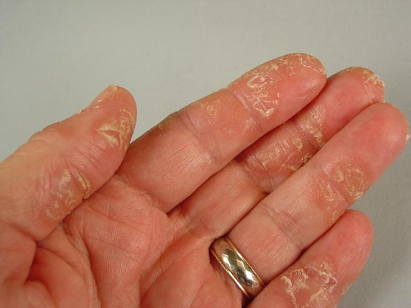 eczema left hand 1 ... (Click to enlarge)