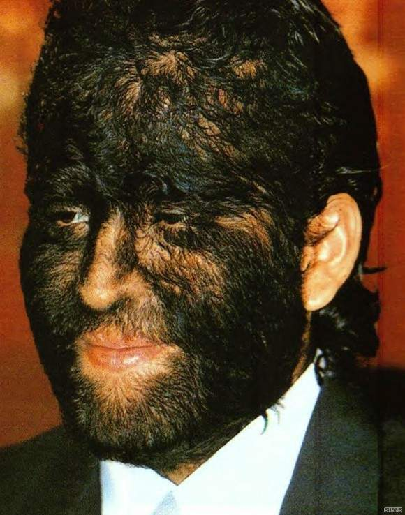 hairy face collar ... (Click to enlarge)
