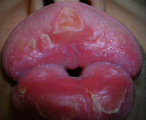 http://curezone.com/upload/_o_p_forums/peeling_lips/le.matin.bis.jpg