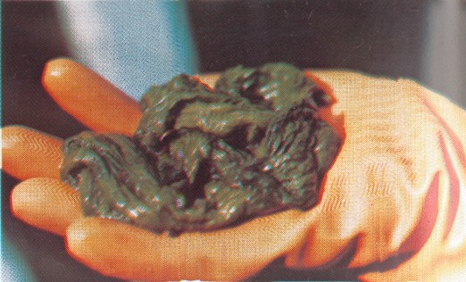 Mucoid Plaque. Photo from Dr. Jensen's  Bowel Man� ... (Click to enlarge)