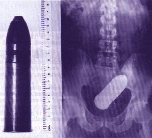Erotic stories doctors rectal