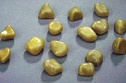 Calcified Gallstones ... (Click to enlarge)