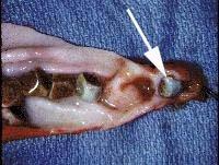 liver_gallbladder/gallbladder_removed ... (Click to enlarge)