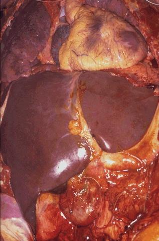 bile after gallbladder surgery