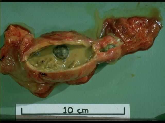 gallstones from the gallbladder ... (Click to enlarge)