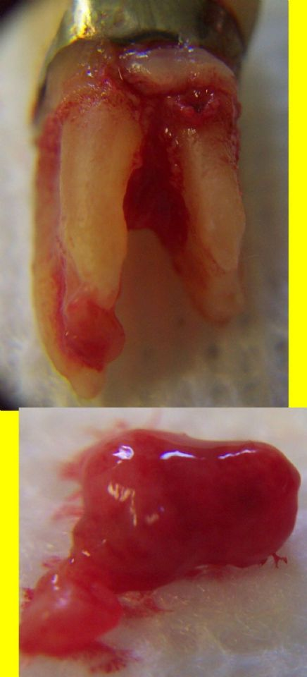 Tooth Abscess ... (Click to enlarge)