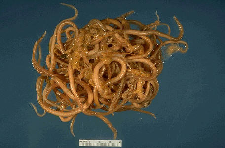 parasites/ascaris_lumbricoides ... (Click to enlarge)
