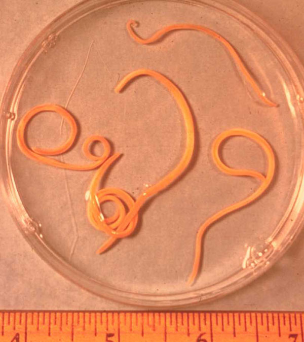 Parasites/ascaris_lumbricoides On CureZone Image Gallery