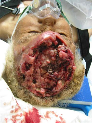 паразиты в голове человека фото