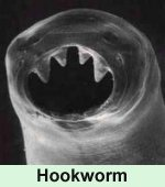 Hookworm parasite under the microscope ... (Click to enlarge)