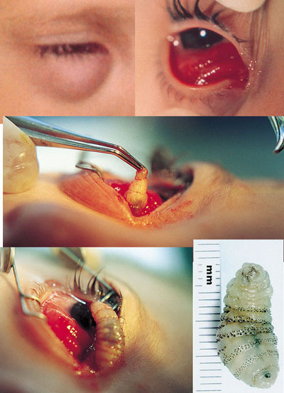 Bot Flies: worm inside human eye