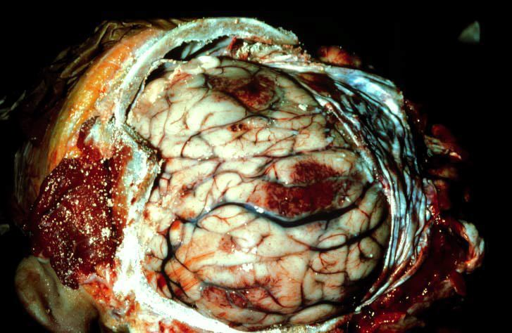 Animal Brain infected with worms/parasites ... (Click to enlarge)