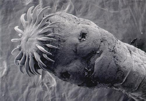 Scolex: Tapeworm head ... (Click to enlarge)