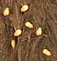 tapeworms eggs on dog On CureZone Image Gallery